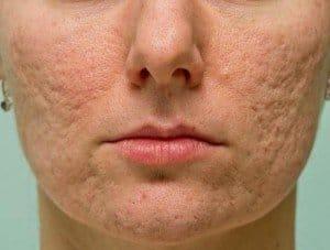 Marcas o cicatrices de acné