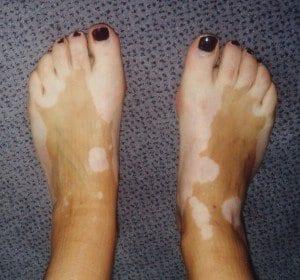 pies vitiligo