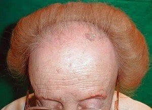 alopecia frontal fibrosante